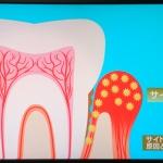 【あさイチ】虫歯や歯周病が動脈硬化を引き起こすって注意が必要!最新治療法も紹介してた