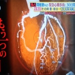 【サタデープラス】最新心臓手術を受けた関根勤のレポートと悪玉コレステロールの話